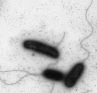 bacterium Vibro cholerae